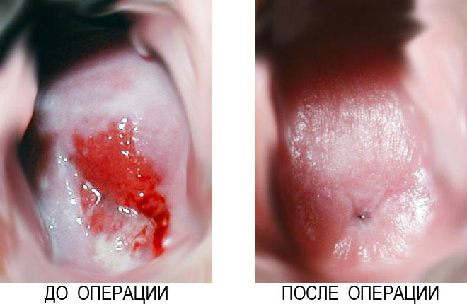 фото пластика больших половых губ