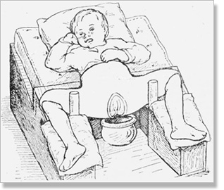 hip dysplasia in children 8