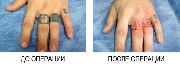 Лазерное удаление татуировок в краснодаре Озонолитическая терапия области подбородка Территория сдт Роща Чебоксары